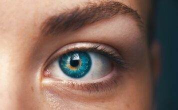 Can psoriasis affect the eyes?